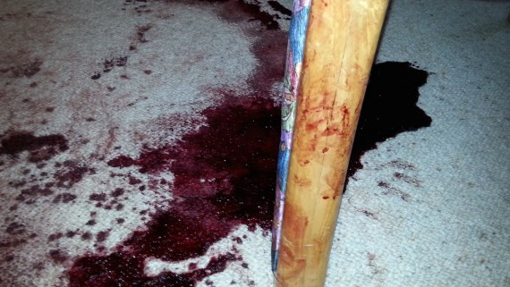 Blood & Body Fluid Cleaning Services